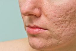 #casting femmes et hommes 16/66 ans avec problèmes de peau pour publicité grande marque de beauté