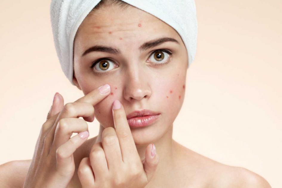 #casting femme 20/25 ans souffrant d'acné, femme 50/60 ans avec des rides et enfant 5/9 ans