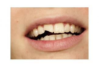 Un homme avec une dentition abimée pour la série #Versailles diffusée sur #Canal+