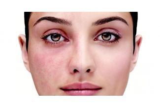 #casting femme 30/40 ans avec problème de #peau #rosacee #erithrose #acnée